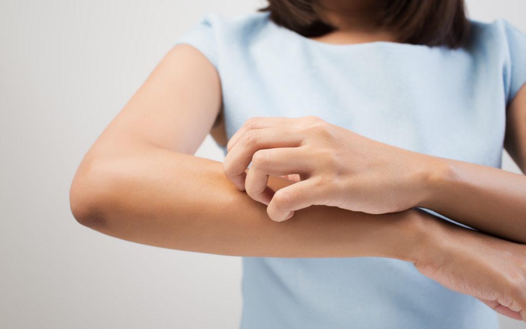 Votre peau souffre ? Nos solutions naturelles et holistiques