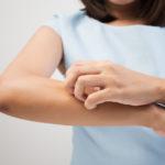 peau qui gratte solutions efficaces et naturelles