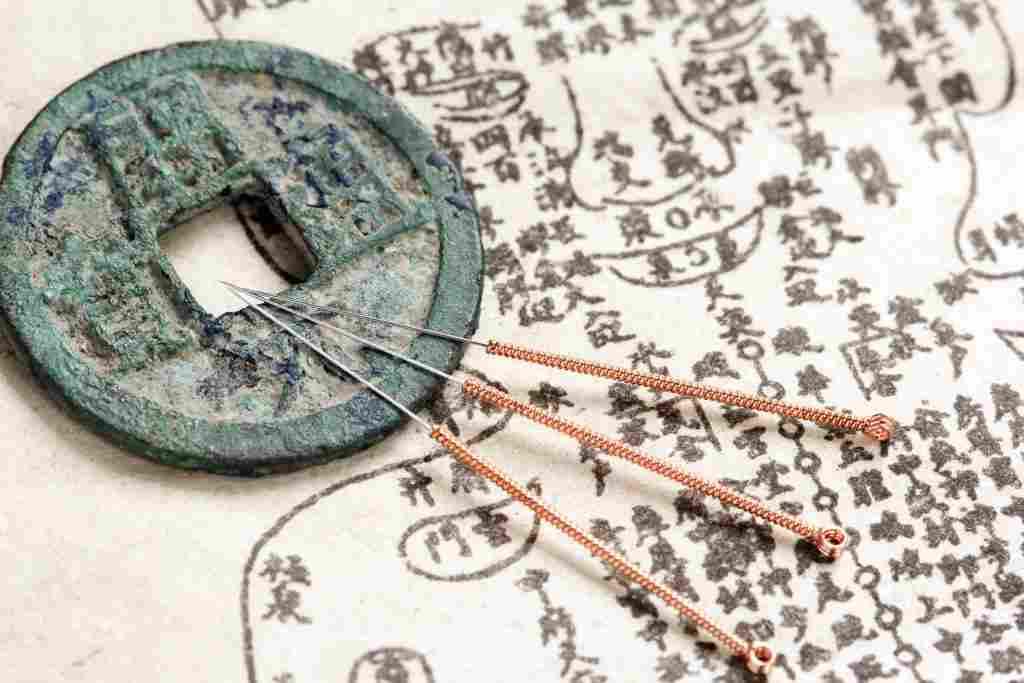 l'acupuncture existait déjà à la préhistoire en Chine